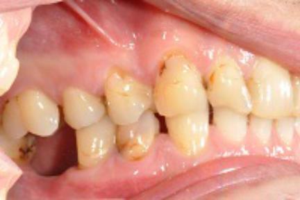 Ausgangsbefund Zahn 12