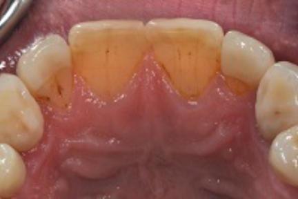 Teilkrone auf Zahn 12 und 22, Composite-Schneidekanten auf Zahn 11 und 21