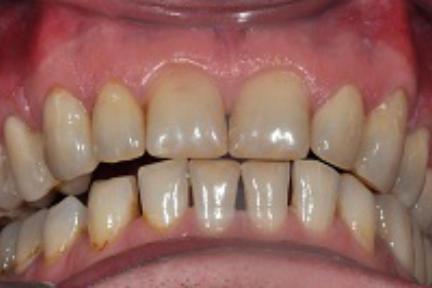 Schneidekantenaufbau auf Zahn 11, 21, 33-43